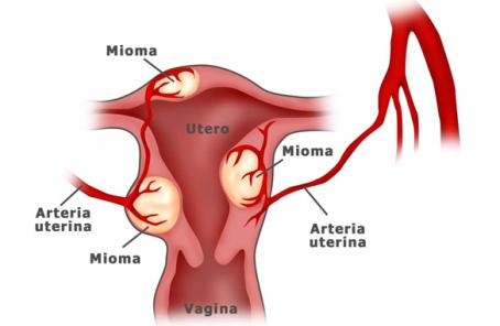 Obat Penghilang Mioma Sampai Keakarnya